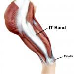 Iliotibial band