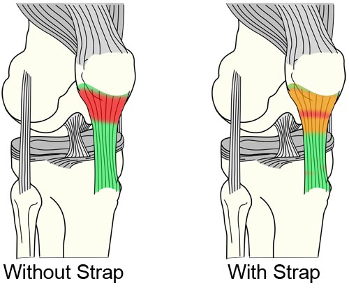 Patellar tendon straps change how force is stress is distributed inside your tendon.