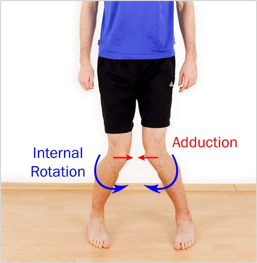 Pictured is an exaggerated example of bad leg alignment. If you do this fast enough on one leg, your ACL may need surgery.