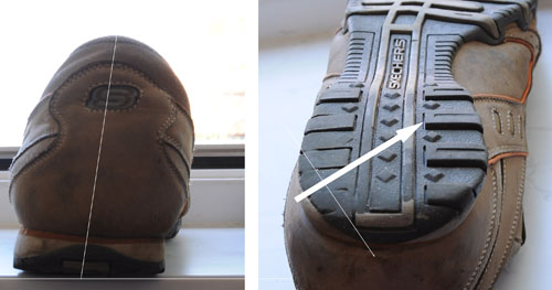 A shoe with a slanted sole can cause knee pain