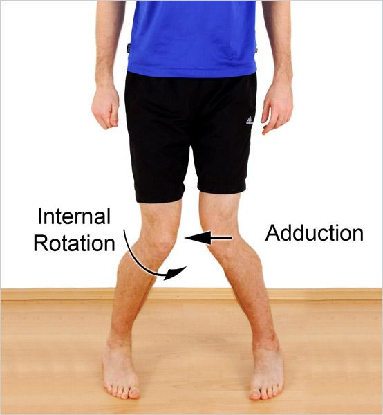 bad leg alignment